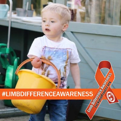 Limb difference awareness month